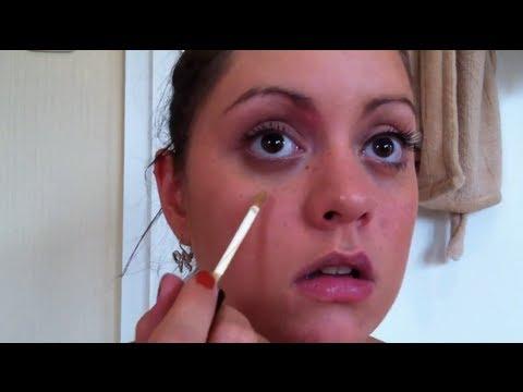 Das Reinigen der Person im Salon von der Pigmentation auf der Person