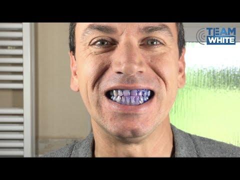 Das Zahnputz-Experiment