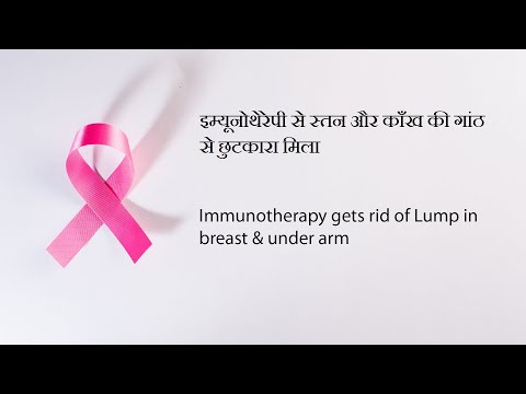 Breast Cancer successfully treated by Cancer Healer Center| ब्रैस्ट कैंसर का खात्म