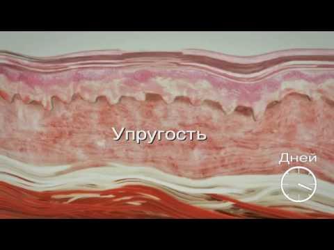 Крем от веснушек и пигментных пятен в
