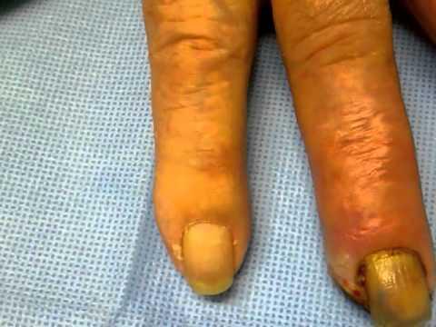 Ginocchio osteoartrite comune di grado 2-3 trattamento