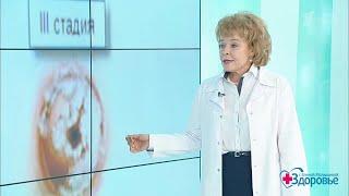Здоровье. Женские болезни. Дисплазия шейки матки.  (21.01.2018)
