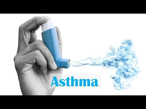 Video Asthma: Causes and Solutions