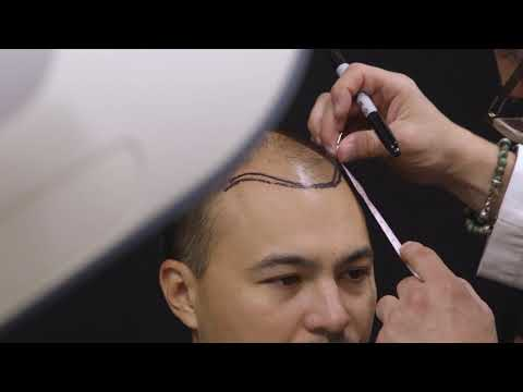 Best Hair Transplant Pittsburgh