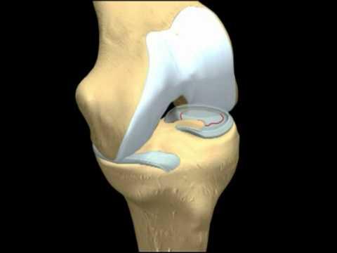 Il dolore alle costole a destra e nella parte posteriore