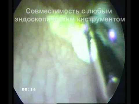 Лазерная коагуляция метаплазии мочевого пузыря