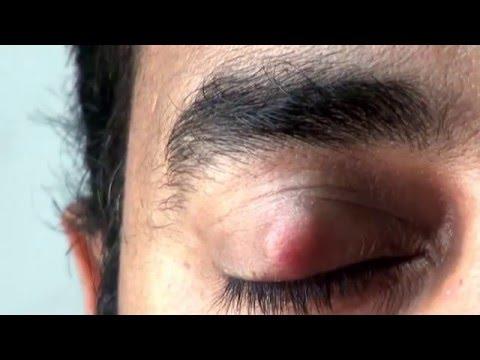 Mga sanhi ng dark circles sa ilalim ng mata ng mga tao