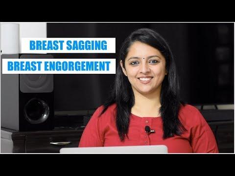 स्तनपान के दौरान स्तनों में दर्द, गाँठे और ढ़ालने के कारण और उपाय | Breast Sagging & Engorgement