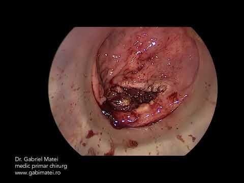 Tratament pt negi genitali