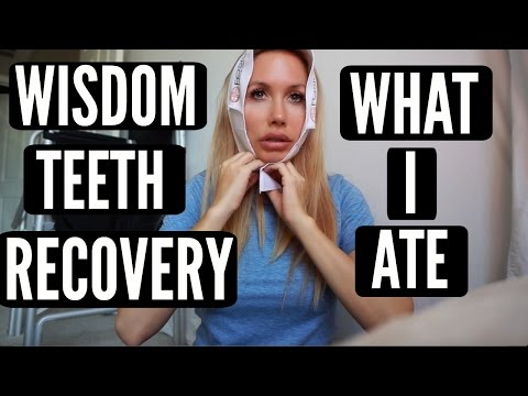 WISDOM TEETH RECOVERY + WHAT I ATE