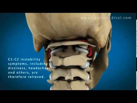 Il mal di schiena dopo essere diventato dà piedi