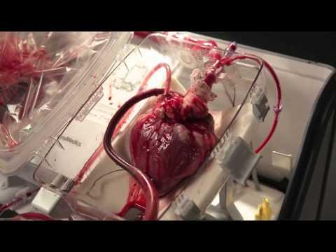 Вчені розробили прилад який дозволяє жити серцю поза тілом (ВІДЕО)