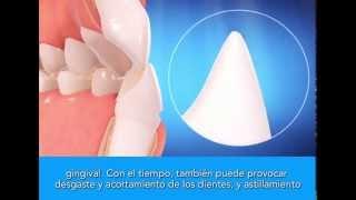 La ortodoncia invisible Invisalign y sus beneficios - Clínica Dental Ortonova