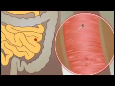 A helmint lokalizálása a testben
