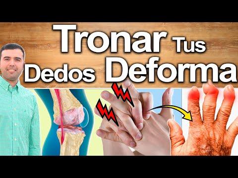 Porqué Tronar o Sonar Los Dedos Destruye Articulaciones
