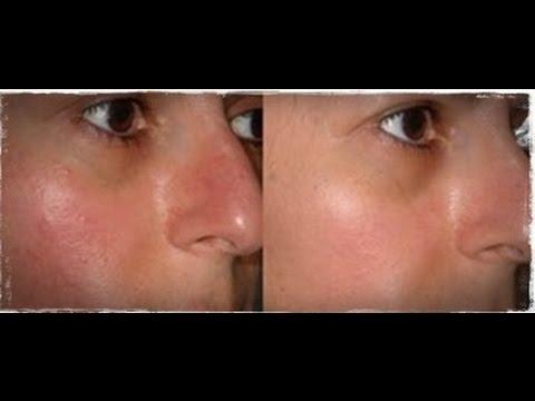 Psoriasi su una faccia e il suo trattamento di una fotografia