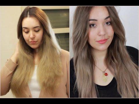 Ob das Haar wegen der Konstipationen prolabieren kann