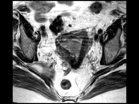 Tratamiento para el papiloma virus en la mujer