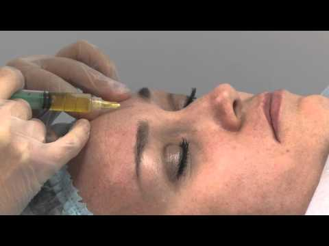 Articolazioni terapia di sanguisuga