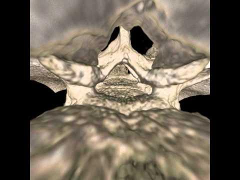 Die Kephalgie im Genick und die Taubheit des Halses
