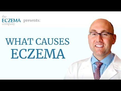 Le psoriasis sur la personne le traitement les préparations