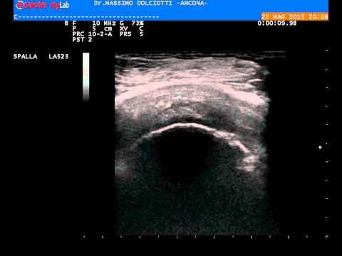 Complicazioni di osteocondrosi della colonna cervicale