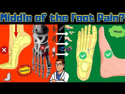 Protocol de tratament pentru deformarea artrozei