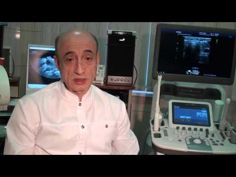 Как избавиться от кальцината в предстательной железе