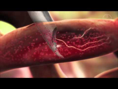 Simptomele și tratamentul viermilor la vârsta adultă