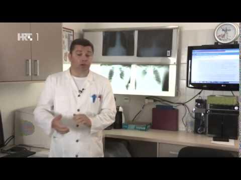 Uklanjanje hipertenzija