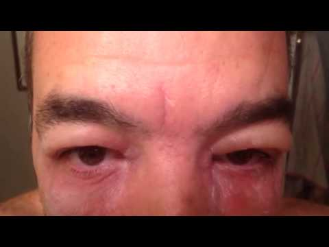 Video Poison ivy on eyes