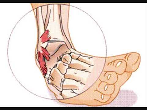 Male le articolazioni delle falangi metacarpo