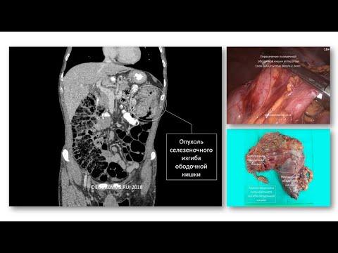 Рак селезеночного изгиба ободочной кишки T3N2M0. Лапароскопическая резекция ободочной кишки.