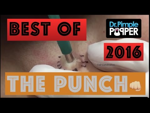 Dr Pimple Popper's Best Punch Removals of 2016