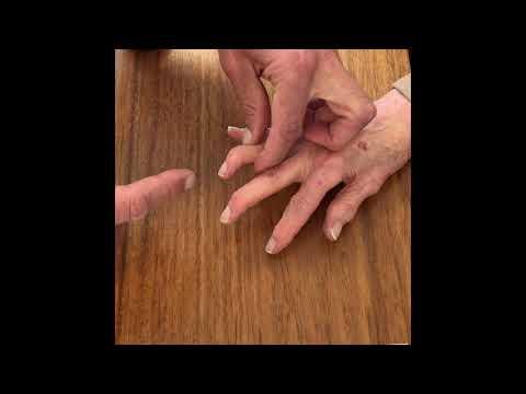 Crize și dureri în articulațiile umărului provoacă
