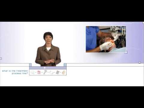 Orthognathic Surgery Presentation