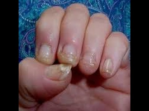 Tratamento de um fungo de prego de pés