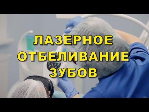 Лазерное отбеливание зубов Киев, фото до и после, отзывы, клиника Люми-дент
