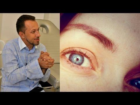 Если белки глаз темные круги