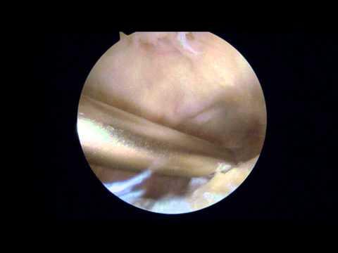 Osteocondroza articulației degetelor de la picioare