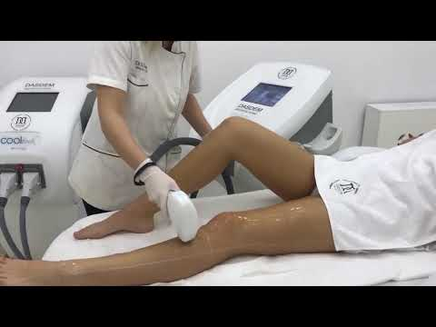 Foot warts natural treatment