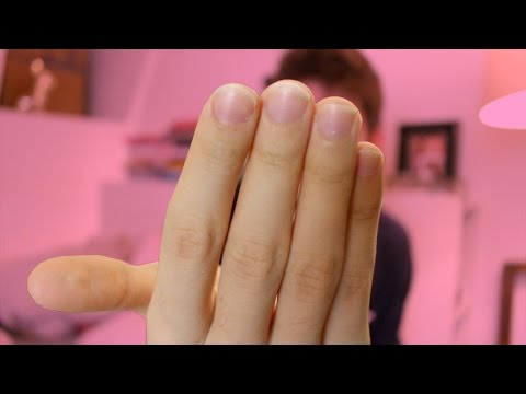 Der Urin von gribka auf den Nägeln der Beine