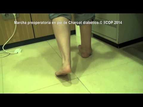 Cuidado angiopatía diabética