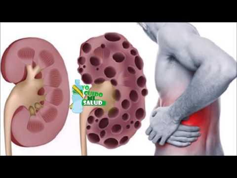 Presión arterial alta debido a la médula