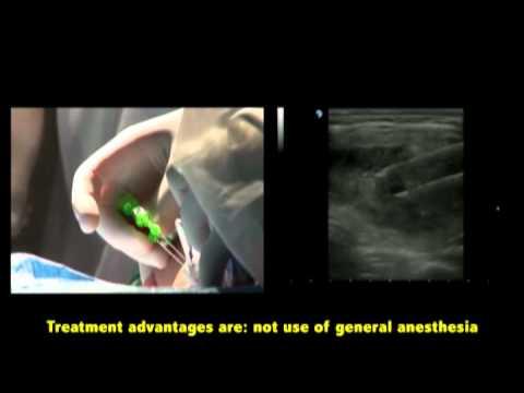 Ligator per vene varicose di un esofago