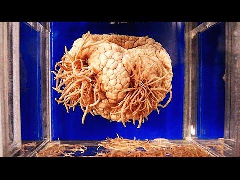 Глисты в органе человека
