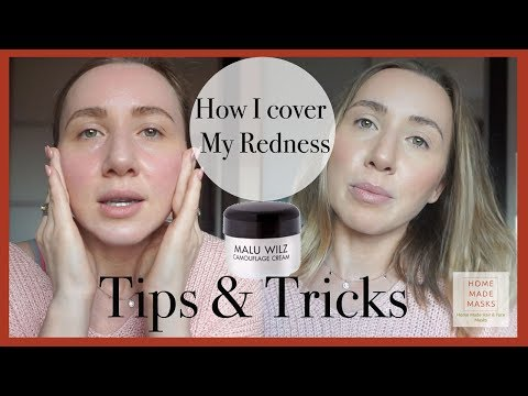How To Cover Rosacea Or Redness (On Your Face)