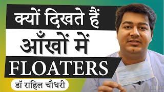 Keratoconus (Hindi) - Самые лучшие видео