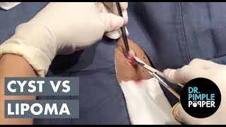 What do YOU think? Cyst vs Lipoma?