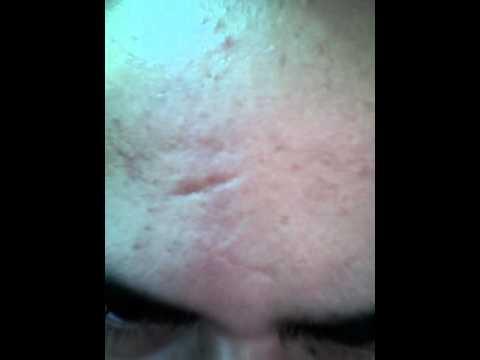 Kung ito ay posible upang alisin ang freckles